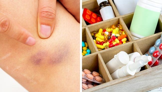 Một số loại thuốc ảnh hưởng đến máu có thể dẫn đến sự xuất hiện của vết bầm tím dưới da