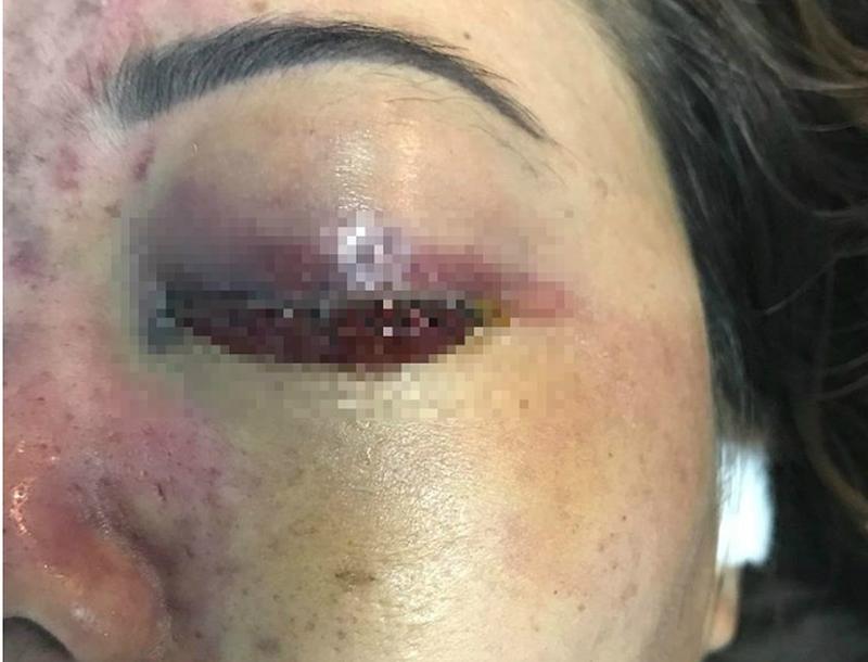 Beauty clinic Spa tiêm filler gây mù mắt khách hàng bị đóng cửa