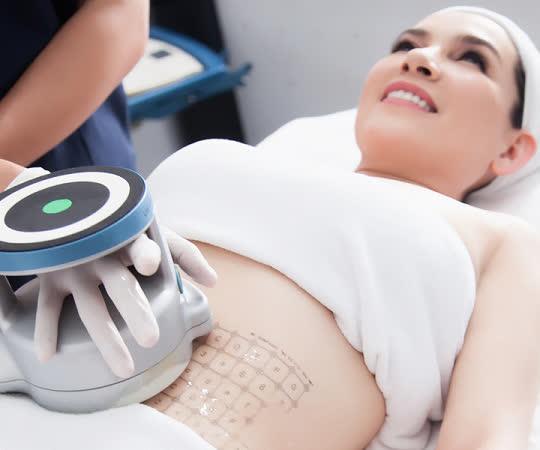 Căng da bụng là cách làm vùng bụng thon gọn, hiệu quả, tăng cường tính thẩm mỹ cao