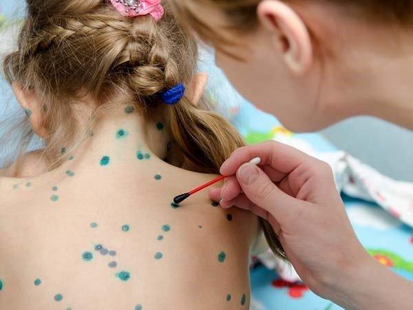 Bệnh thuỷ đậu ở trẻ em cần kiêng gì? Chăm sóc cho trẻ bị bệnh thuỷ đậu đúng cách ảnh 5