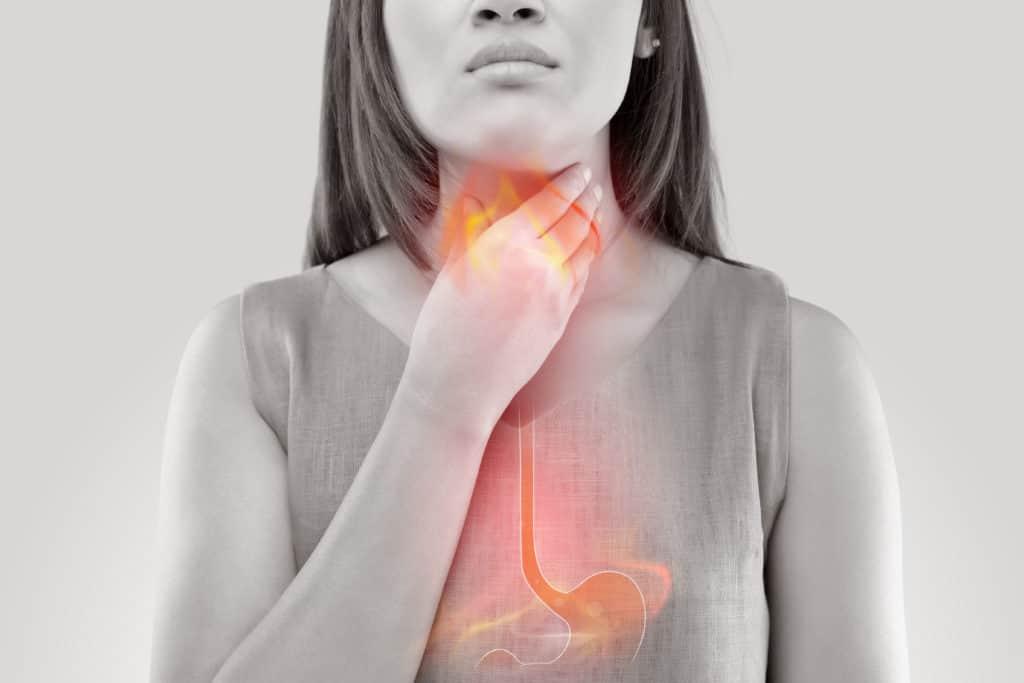 Ợ hơi đầy bụng: Nguyên nhân và cách điều trị hiệu quả ảnh 5