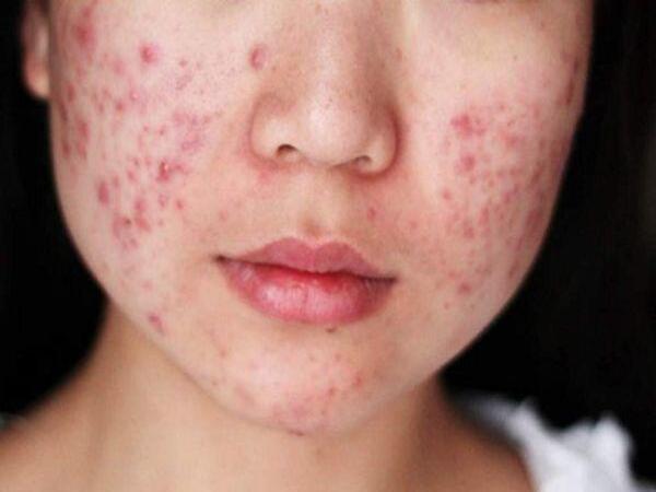 Những vị trí mụn trên mặt và dấu hiệu bệnh tật nguy hiểm liên quan ảnh 1