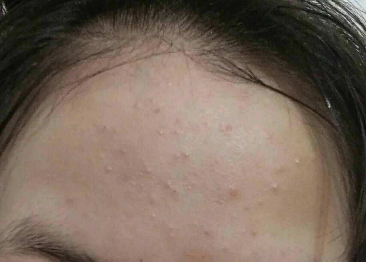 Những vị trí mụn trên mặt và dấu hiệu bệnh tật nguy hiểm liên quan ảnh 2