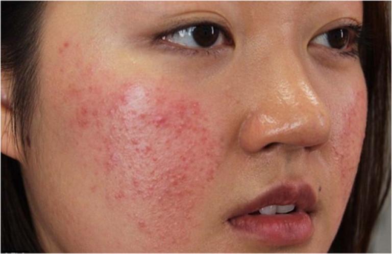 Những vị trí mụn trên mặt và dấu hiệu bệnh tật nguy hiểm liên quan ảnh 3