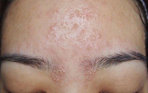 Những vị trí mụn trên mặt và dấu hiệu bệnh tật nguy hiểm liên quan ảnh 5