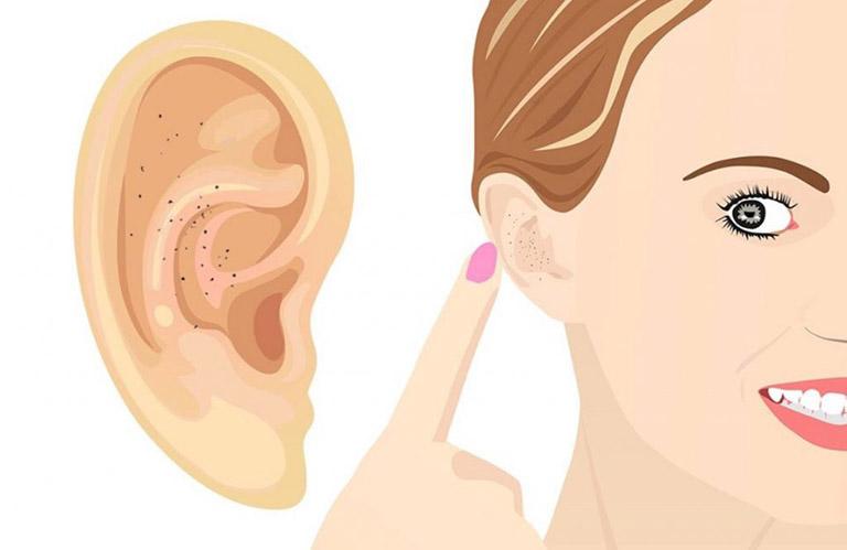Những vị trí mụn trên mặt và dấu hiệu bệnh tật nguy hiểm liên quan ảnh 8