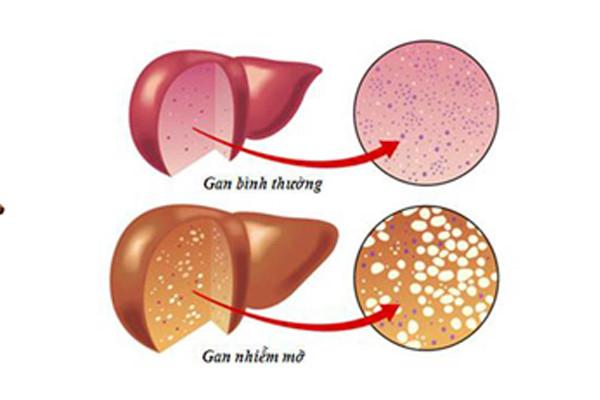 Gan nhiễm mỡ do nguyên nhân chính là lượng mỡ bị dư thừa trong cơ thể