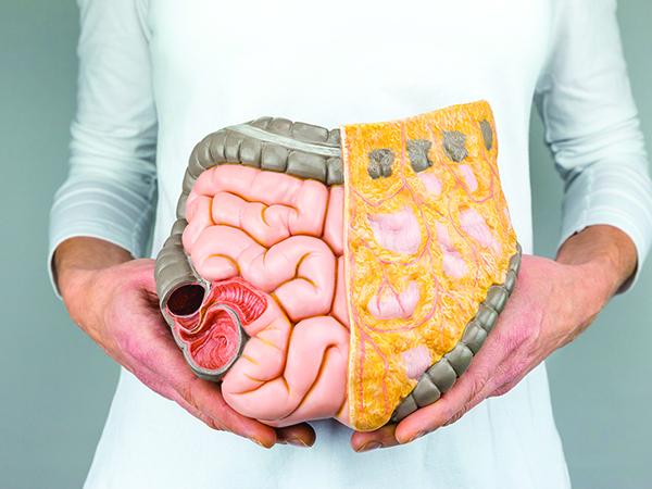 Ung thư biểu mô tuyến biết hóa vừa là một dạng ung thư đại tràng