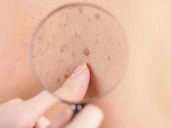Dựa vào sự thay đổi của nốt ruồi để nhận biết bệnh ung thư tế bào hắc tố