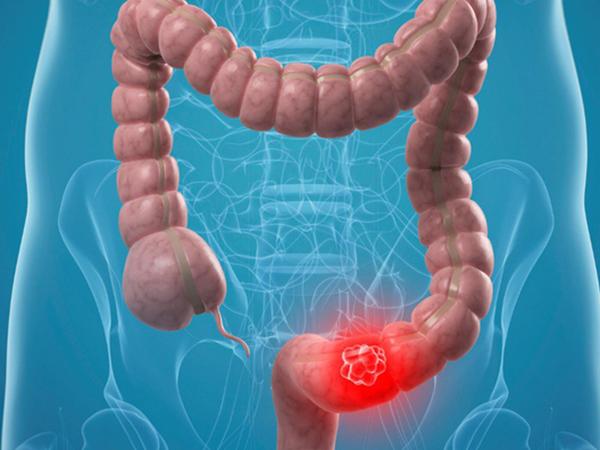 Hiện vẫn chưa biết nguyên nhân chính xác gây ra bệnh ung thư ruột non