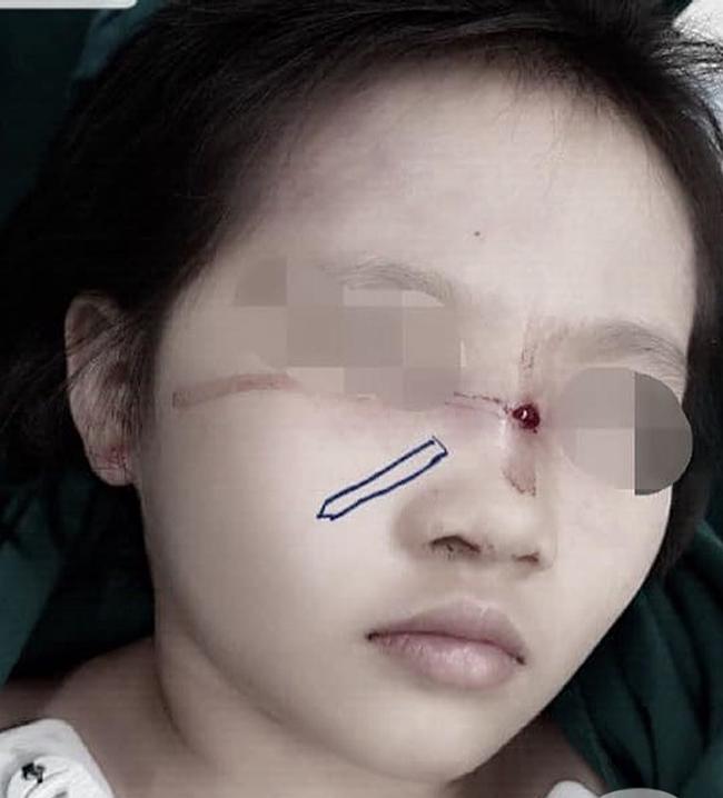 Bé gái bị bút chì đâm xuyên qua mũi khi giành nhau với chị - Ảnh 2