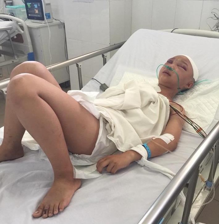 Thương cảnh cô bé bị xe tông nứt sọ, gia đình cơ cực không tiền cứu chữa - Ảnh 1