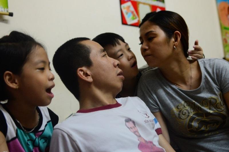 Ca phẫu thuật huyền thoại Việt – Đức: sau 29 năm, gặp lại người em song sinh - Ảnh 4