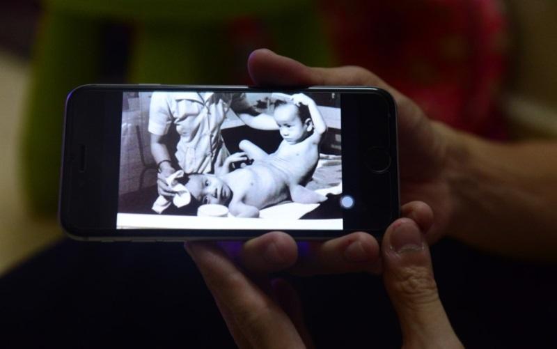 Ca phẫu thuật huyền thoại Việt – Đức: sau 29 năm, gặp lại người em song sinh - Ảnh 1