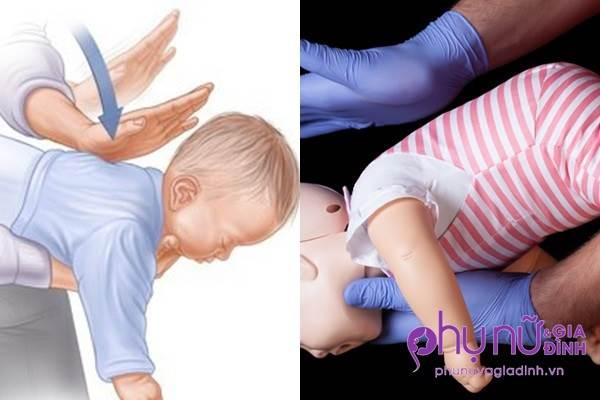 Trẻ bị hóc dị vật, cha mẹ cần làm ngay điều này để cứu con kẻo ân hận cả đời - Ảnh 1
