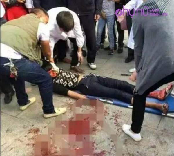 Người đàn ông bị dao đâm vào đầu vẫn ung dung đuổi theo hung thủ - Ảnh 2