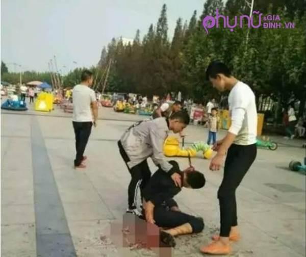Người đàn ông bị dao đâm vào đầu vẫn ung dung đuổi theo hung thủ - Ảnh 1