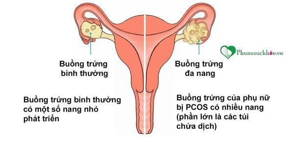 Phụ nữ mắc buồng trứng đa nang có bị vô sinh không? - Ảnh 2