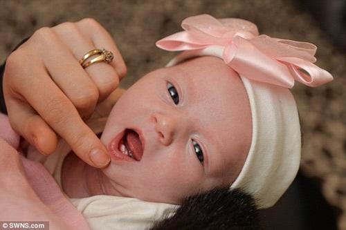 Da trắng, mắt to, bé gái sơ sinh này còn sở hữu đặc điểm lạ gây ngỡ ngàng - Ảnh 1