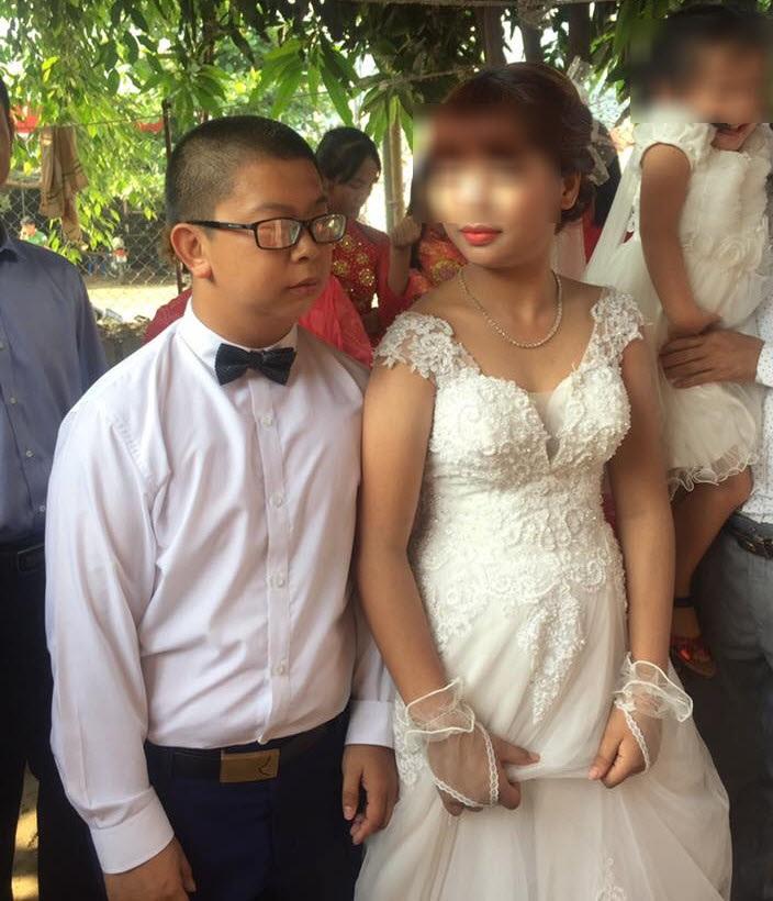 Xôn xao đám cưới cô dâu Sơn La trẻ măng và chú rể Trung Quốc giống bị down - Ảnh 4