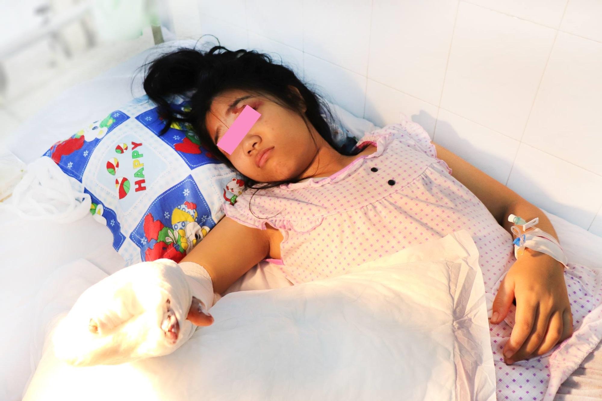 Phẫu thuật tái tạo bàn tay cho bé gái 14 tuổi bị xe container cán phải - Ảnh 2
