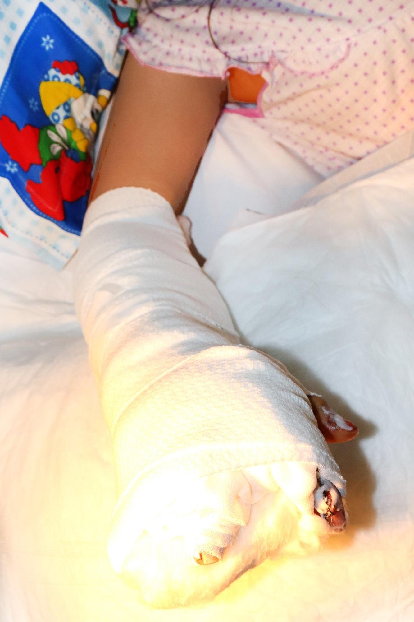 Phẫu thuật tái tạo bàn tay cho bé gái 14 tuổi bị xe container cán phải - Ảnh 1