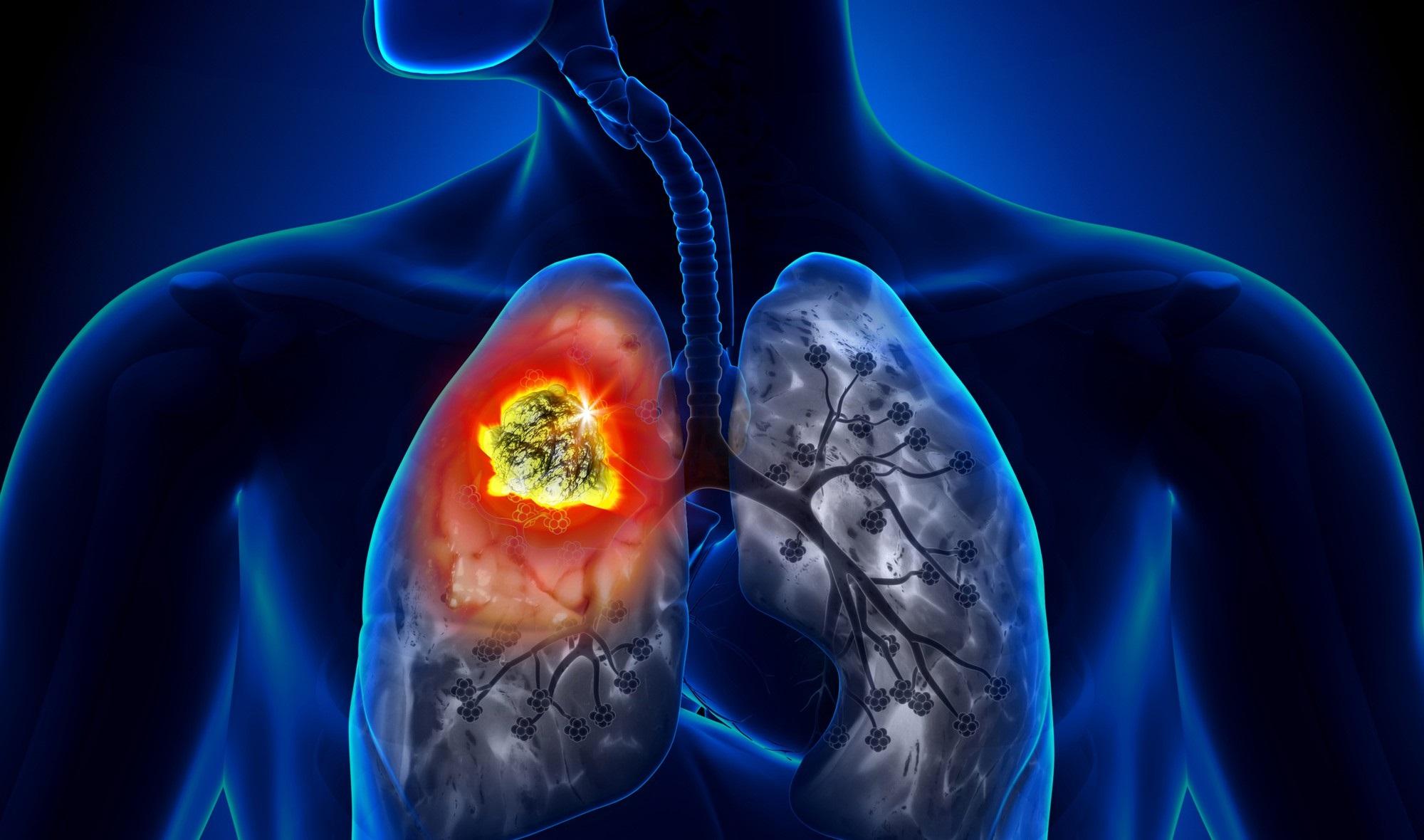 8 căn bệnh ung thư gây tử vong hàng đầu thế giới - Ảnh 1