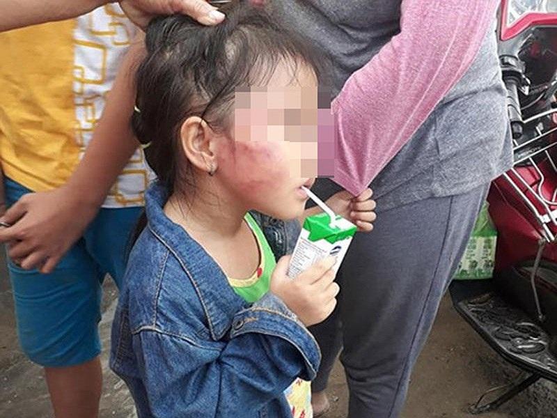Vụ bạo hành trẻ ở Bình Chánh: Cô giáo giơ kéo dọa cắt lưỡi nếu mách mẹ - Ảnh 1