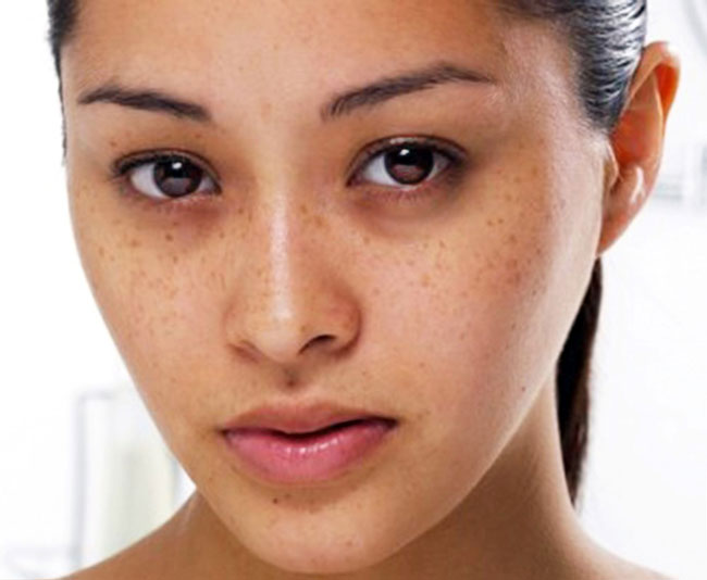 nước đậu đen xanh lòng còn giúp bạn xóa sạch mụn và các vết thâm nám trên da.