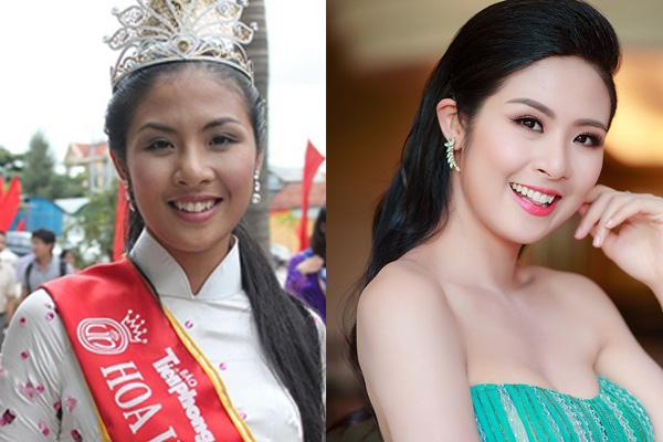 Hàm răng khấp khểnh ngày nào của Hoa hậu Ngọc Hân đã đều tăm tắp và sáng bóng, thẳng hàng. Ảnh minh họa: Internet