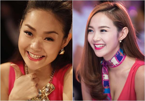 Bước vào showbiz với vẻ ngoài dễ thương và xinh xắn nhưng Minh Hằng lại có nhược điểm là hai chiếc răng cửa khá thưa. Chính vì thế, cô đã quyết định chỉnh sửa răng để có nụ cười tự tin và rạng rỡ hơn. Ảnh minh họa: Internet