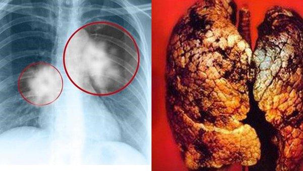 Trẻ nhất Việt Nam, nam sinh 17 tuổi chết vì ung thư phổi - Ảnh 2