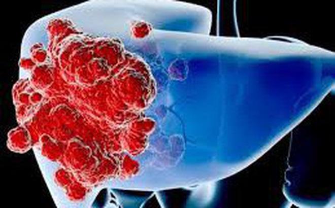 Ung thư là một trong những nguyên nhân gây tử vong hàng đầu trên thế giới