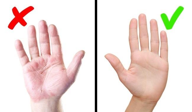 Các biểu hiện trên da cảnh báo bệnh nguy hiểm bạn không nên bỏ qua - Ảnh 5