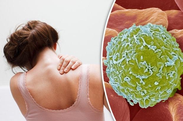 Những vết bầm và dấu hiệu cảnh báo bệnh ung thư máu đáng sợ