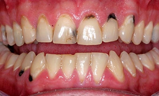 Đặc trị sâu răng, nhiệt miệng, viêm nướu bằng 1 nắm lá ổi - Ảnh 1