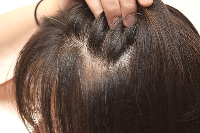Tuyệt chiêu biến tóc bạc thành tóc đen siêu đơn giản từ khế chua - Ảnh 1
