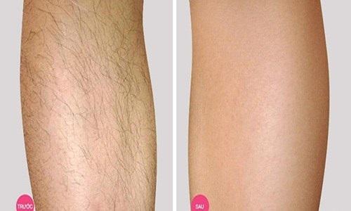 Mách bạn cách tẩy lông không đau rát từ chanh + muối, hiệu quả đến 99,9% - Ảnh 5