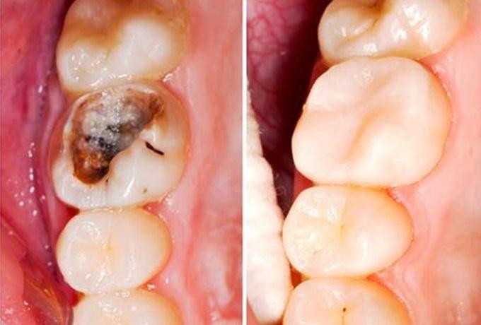 Vò 1 nắm lá ổi đun lấy nước, hôi miệng, viêm nướu thậm chí là sâu răng cũng trị dứt điểm chỉ sau 1 đêm - Ảnh 5