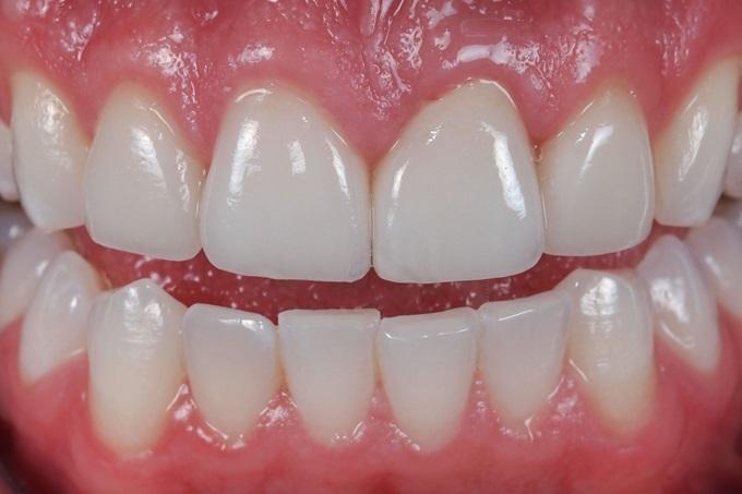 Răng trắng bóc, đều như hạt bắp chỉ bằng loại rau chưa đến 2k này - Ảnh 5