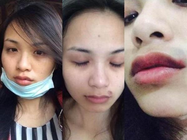 Xót xa những mỹ nhân Việt từng bị chồng bạo hành - Ảnh 2
