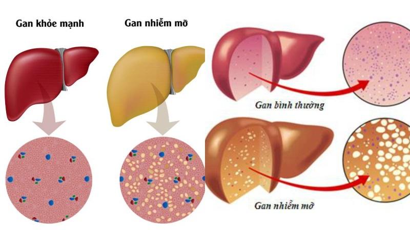 Cách chữa gan nhiễm mỡ tự nhiên bằng ly nước uống đơn giản này