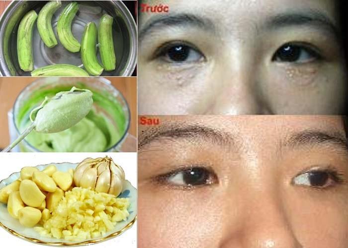Điều trị mụn thịt quanh mắt bằng tỏi và chuối xanh.
