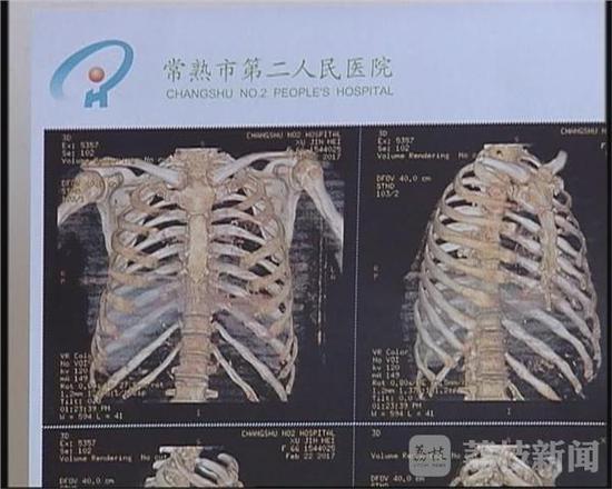 Nghịch tử đánh mẹ già 67 tuổi gãy 11 xương sườn, điếc một bên tai - Ảnh 2
