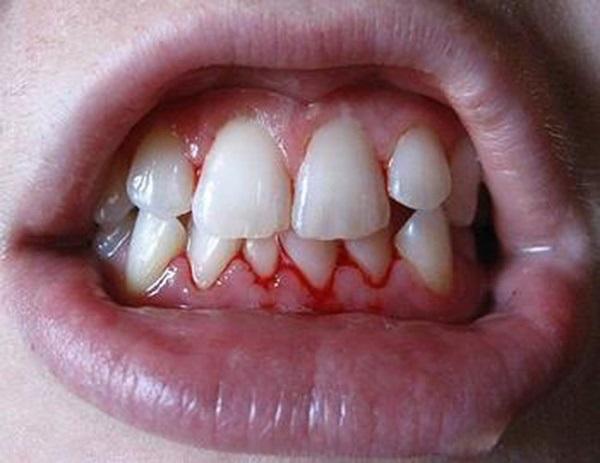 Đừng dại mà lười đánh răng nếu không bạn sẽ hối hận đó! - Ảnh 2