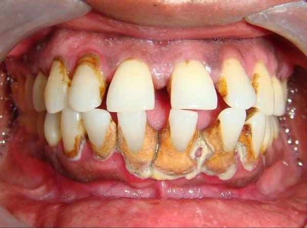 Đừng dại mà lười đánh răng nếu không bạn sẽ hối hận đó! - Ảnh 3