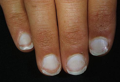 7 dấu hiệu của móng tay tiết lộ tình trạng sức khỏe của bạn - Ảnh 2