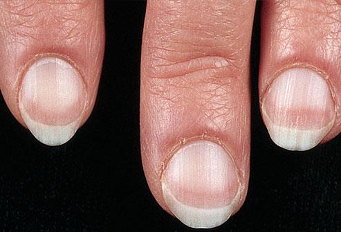 7 dấu hiệu của móng tay tiết lộ tình trạng sức khỏe của bạn - Ảnh 1