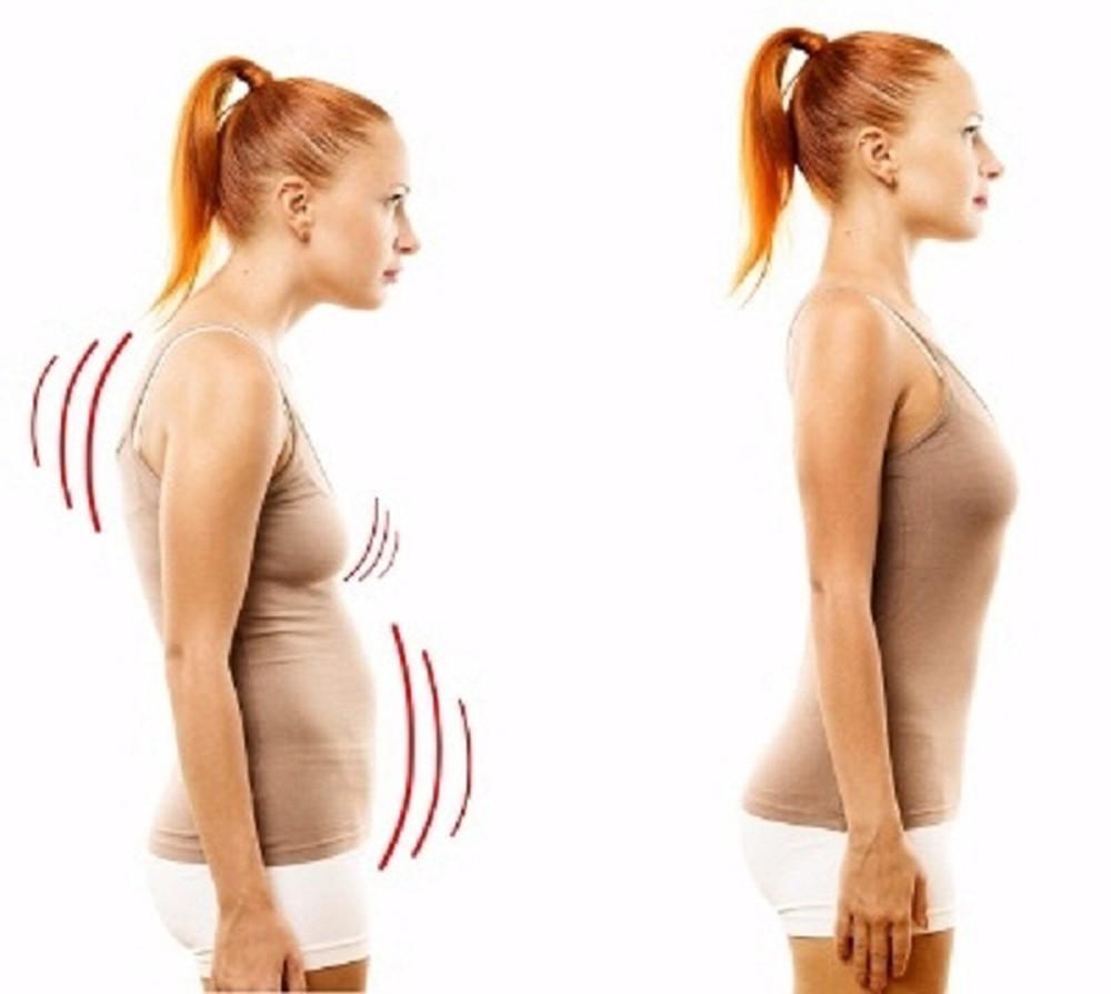 Khòm lưng khiến vòng 1 chảy xệ, ảnh hưởng đến sự phát triển của bầu ngực