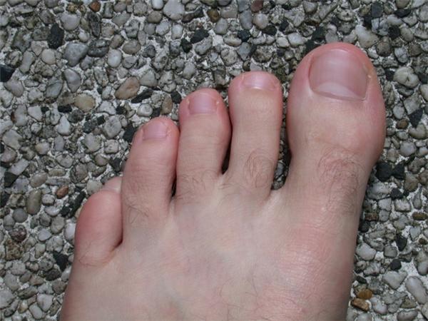 Phụ nữ nào có lông trên ngón chân cái thì cả đời chẳng cần phải lo phiền não, sầu muộn